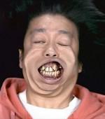 バナナマン日村 歯